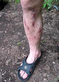 plaie qui ne cicatrise pas pied
